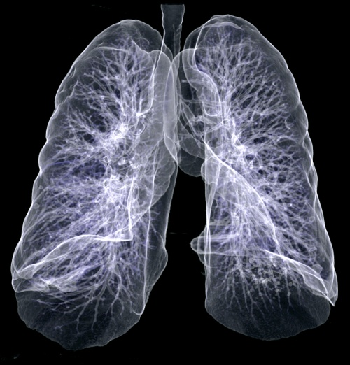 КТ лёгких как выглядит