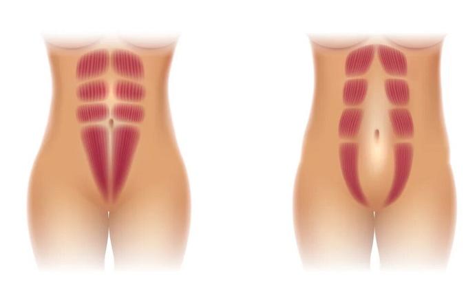 Слева - норма, справа - диастаз